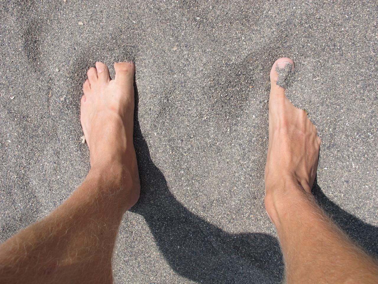 Schwarzer Sandstrand heizt sich dann doch extrem auf, wie die geplagten Fußsohlen äußerst schnell zu spüren kriegen.